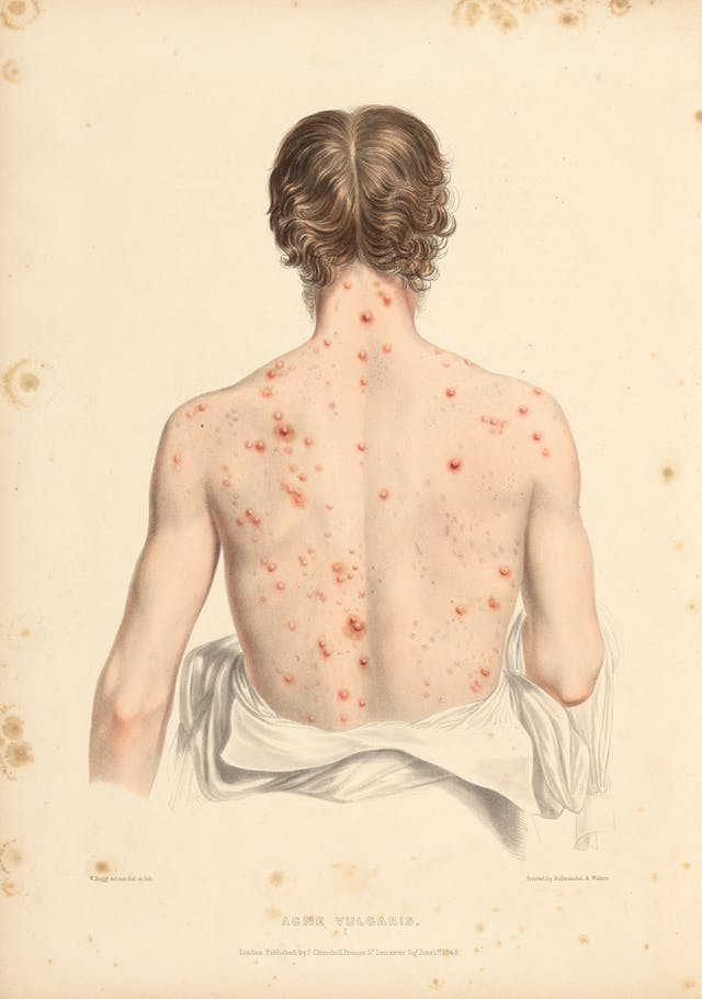 Photograph of an illustration showing the back of a man