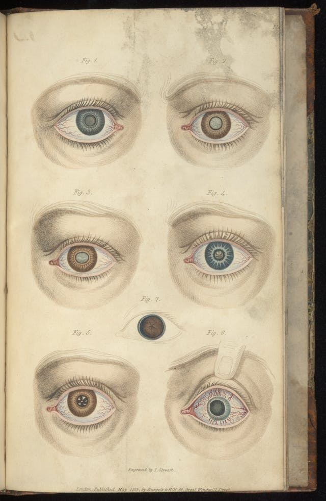 Colour engravings of problems with the eye depicting unusual irises and corneas, for instance with zig-zag lines or clouding.