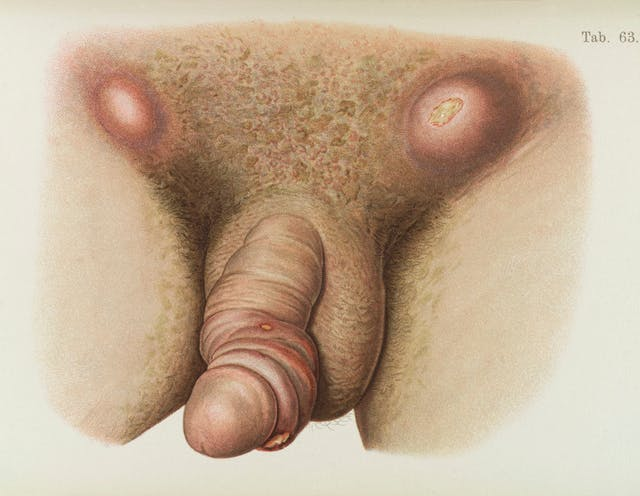 Illustration of male pubis and penis diseased with Syphilis