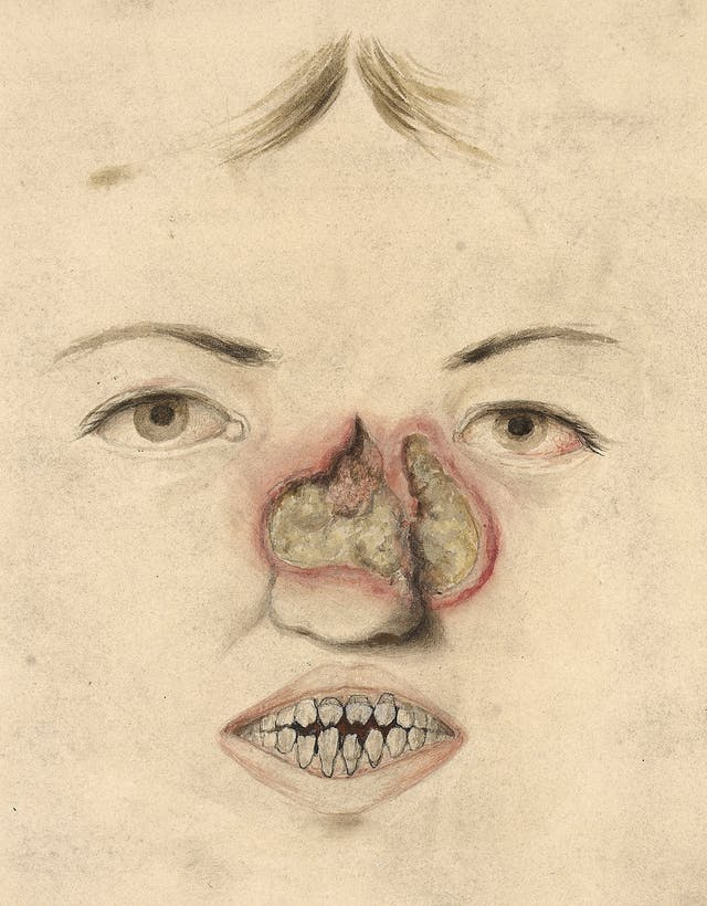 A 15-year-old girl with congenital syphilis.