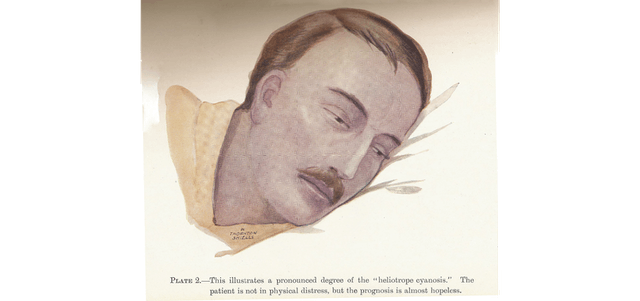 """Drawing of a man with cyanosis. Text reads: Plate 2. This illustrates a pronounced degree of the """"heliotrope cyanosis."""" The patient is not in physical distress, but the prognosis is almost hopeless."""