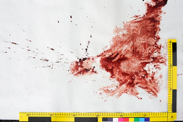 Photograph of a blood spatter on a white surface with forensic crime scene rulers and colour patches.