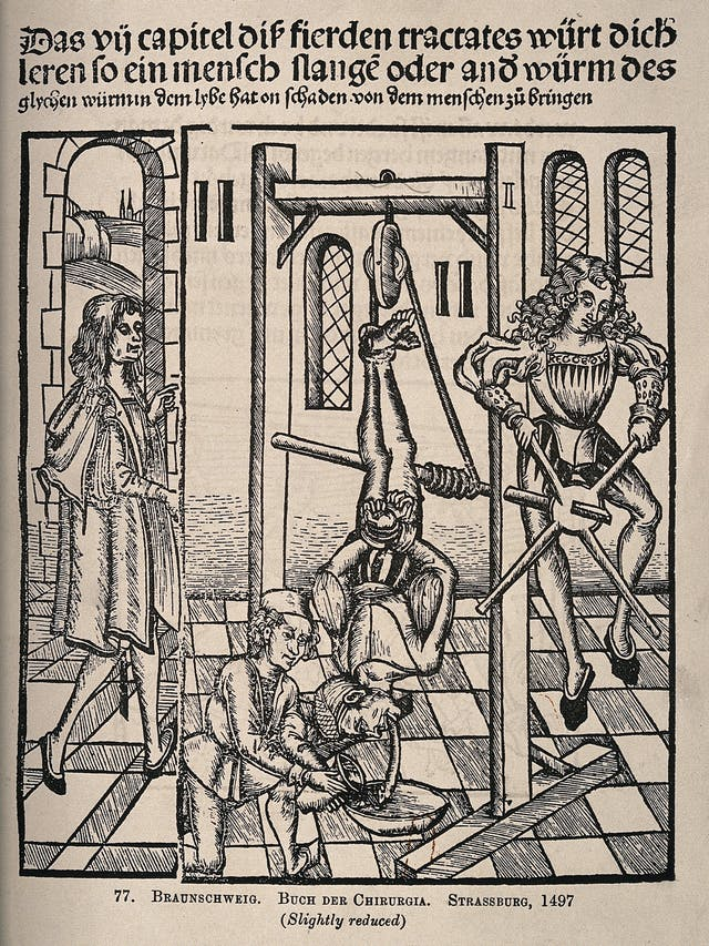 15th-century woodcut showing a man supervising two assistants, one of which is pouring liquid onto the worm emitting from the patient