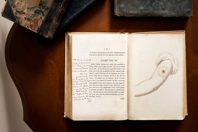 Photograph of an open early printed book resting on a wooden desk. The open double page spread shows printed text on the left hand page, with hand written annotation. The right hand page shows an illustration of an arm with a large crater mark on the bicep. Around the open book can be seen other old books and the ornate edge of the tabletop.