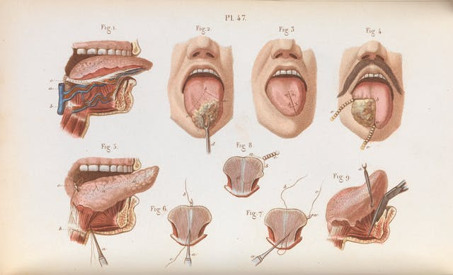 手术治疗的舌癌分期彩色图版
