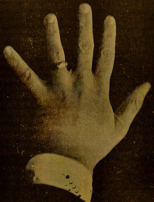 Black and white photo of Emile Zola's hand.