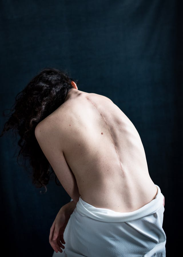 Photograph of the back of a woman seated on a stool, naked from the waist up. She is leant over slightly to the left. Along her spine is the visible scar from an operation to correct for scoliosis.
