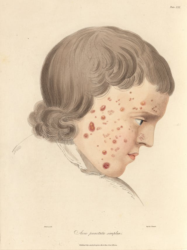 Photograph of an illustration showing the head and shoulders of a man, with red acne marks on his face.