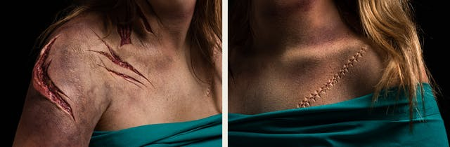 Photographic diptych. The image on the left shows the right shoulder and chest of a woman. Her chest is covered with a green surgical sheet. She has prosthetic makeup applied which creates the realistic effect of her neck and shoulders having been slashed with a knife. The makeup reveals the layers below the skin. The image on the right shows the left shoulder and chest of the same woman, with her chest again covered with a green surgical sheet. She has prosthetic makeup applied which creates the impression of a long surgical cut which has been stitched up.
