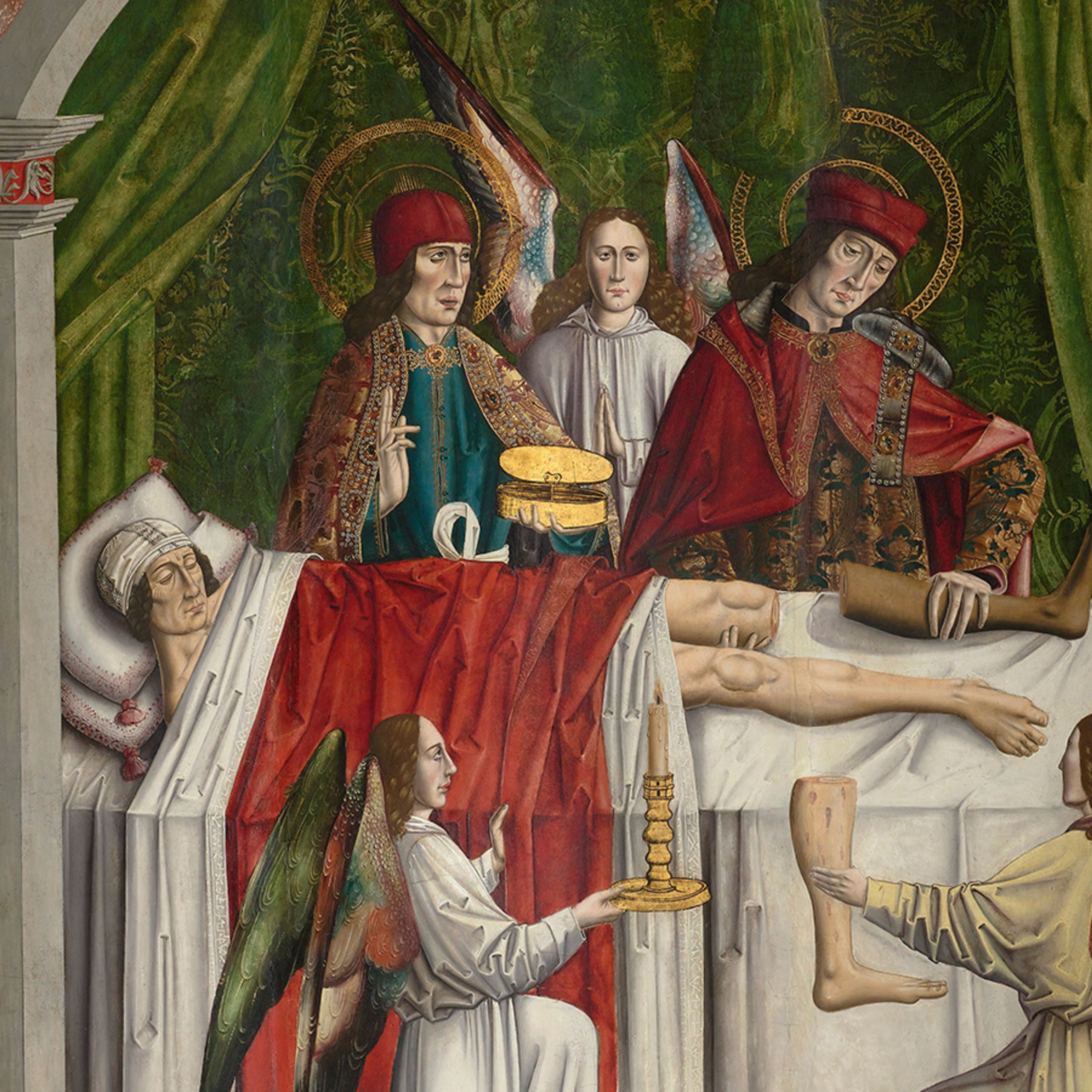 A verger's dream: Saints Cosmas and Damian performing a miraculous cure by transplantation of a leg. Oil painting attributed to the Master of Los Balbases, ca. 1495.