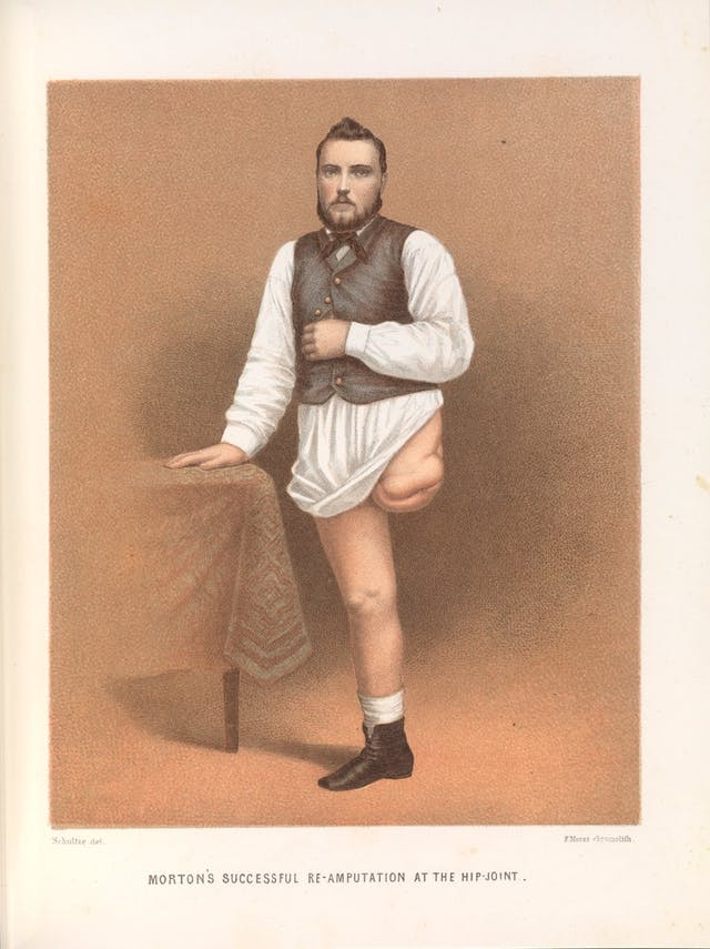 Colour book illustration showing a young man with one leg amputated at the hip