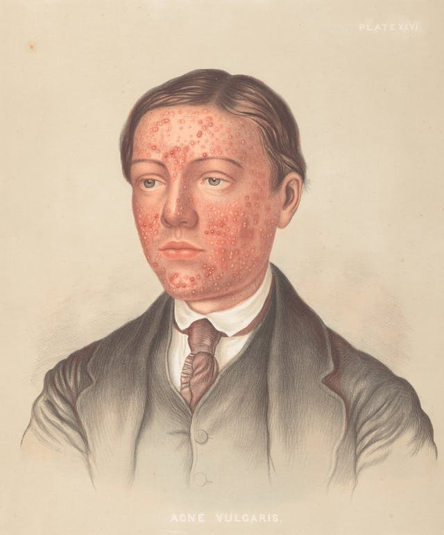 Photograph of an illustration showing the head and shoulders of a man in a suit and tie, with red acne marks on his face.