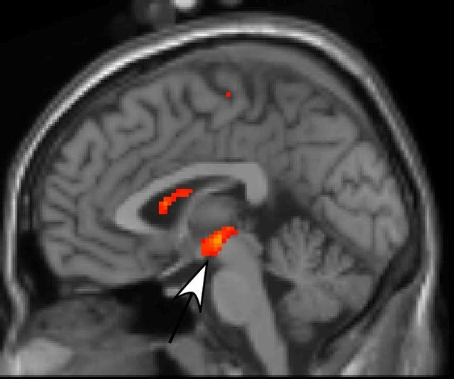 Side view of a brain scan showing areas in the middle and one in the upper middle marked with red to indicate activity.