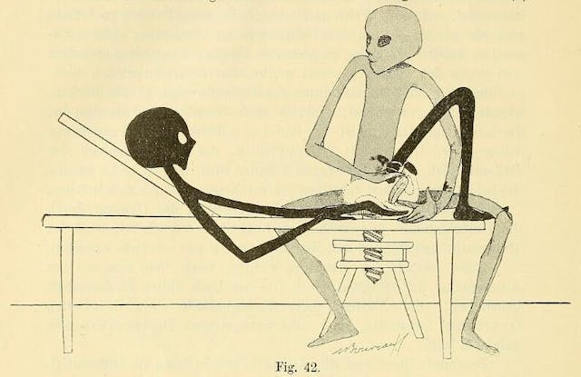 Black and white outline drawing of a person sitting on an adjustable stool whilst another person lies on a bed. The seated figure has one hand on the lower abdomen on the reclined figure, and their other hand is inserted inside the vagina.