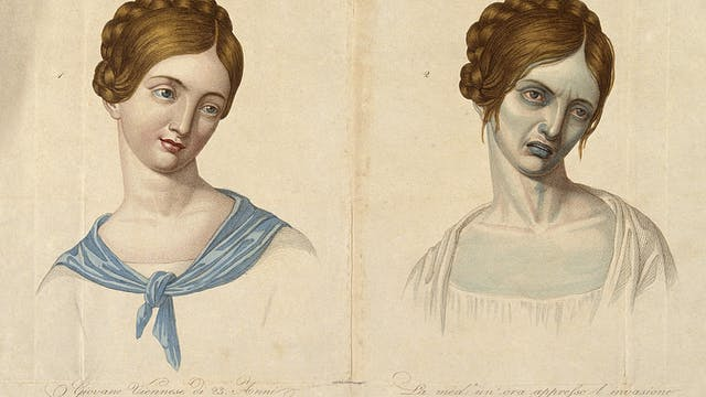 A young Viennese woman, aged 23, depicted before and after contracting cholera