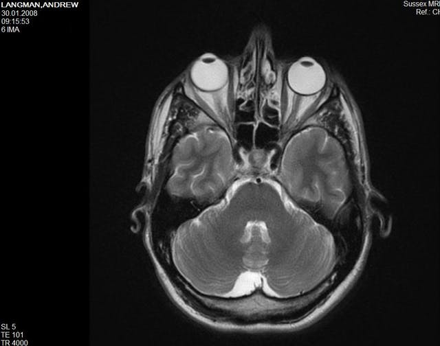 Black and white MRI scan of the human brain.