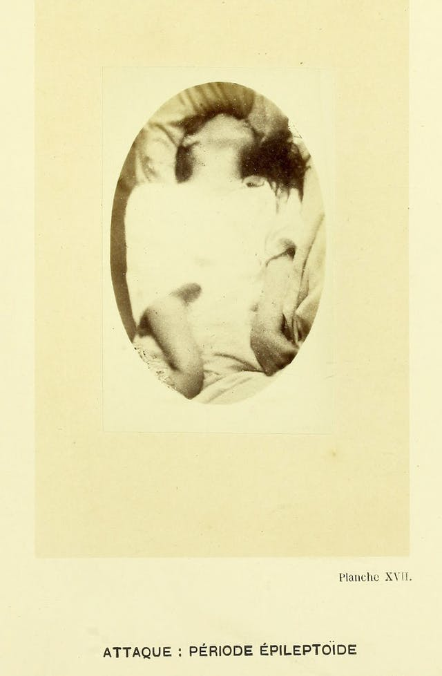 Photograph of a woman having an epileptic seizure at Saltpetriere Hospital
