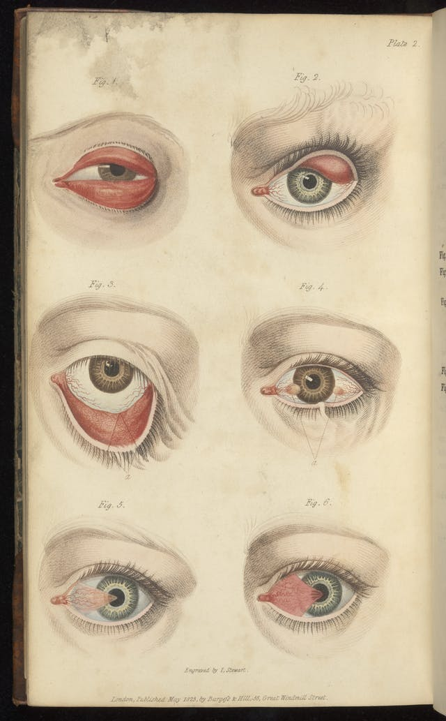 Colour engravings of eye problems such as muscles grown over eyeballs or turned inside out.