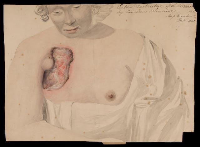 水彩画,一个女人向下看-她的上半身暴露,显示她的右乳房被癌症破坏