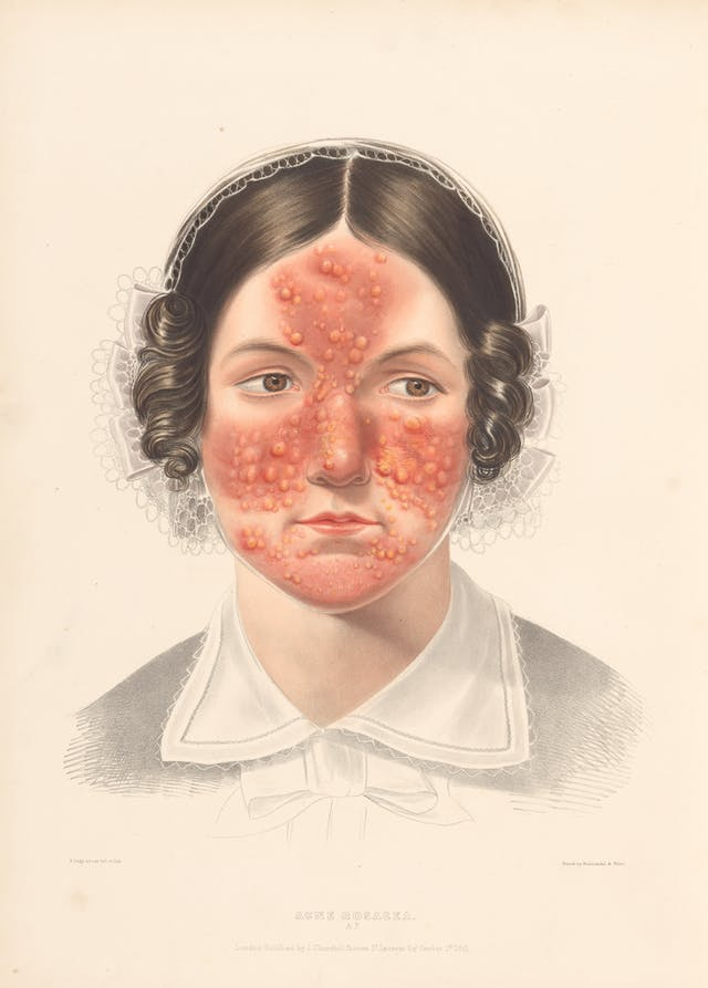 Photograph of an illustration showing the head and shoulders of a woman in a bonnet with red acne marks on her face.