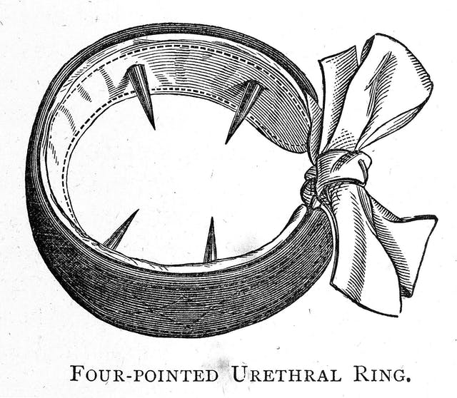 Four-pointed urethral ring for the treatment of masturbation