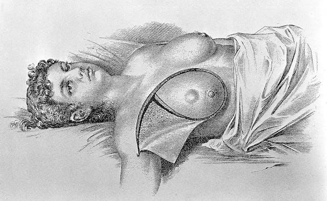 一名妇女接受根治性乳房切除术的插图——手术切除她的右乳房