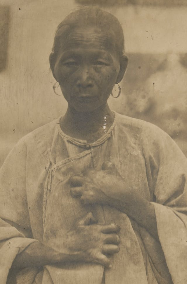 A Chinese woman suffering from leprosy