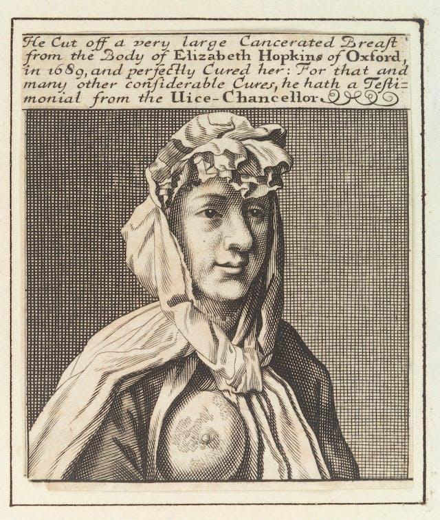 18世纪一位乳腺癌患者裸露右乳房的雕刻