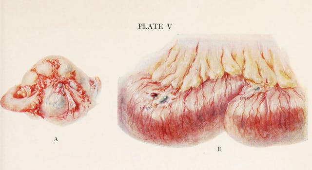 "Illustration of an ovary on the left and part of the ileum on the right, both of which have endometrial implants adhering to them and labelled with arrows and the word ""imp."""