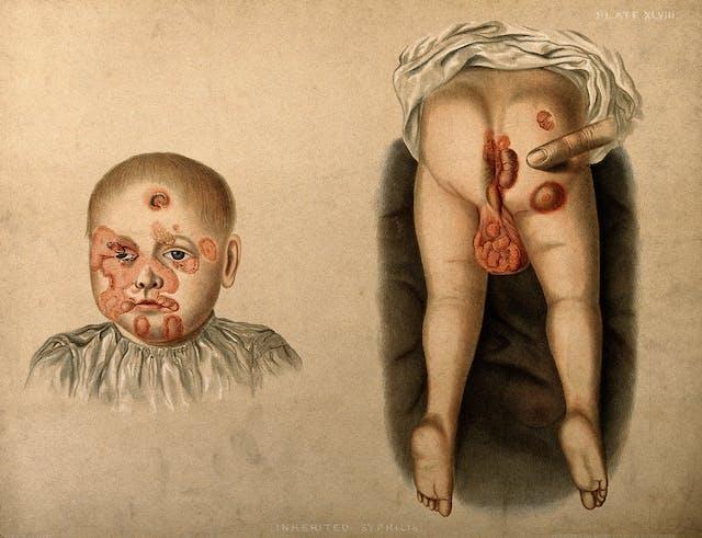 A baby boy with congenital syphilis.