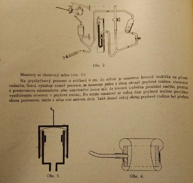 A journal page depicting the workings of a plethysmograph.