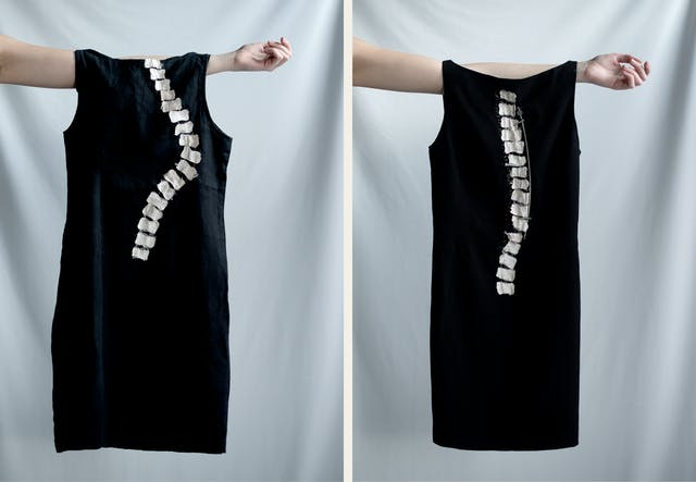 Photographic diptych. Both images show an arm held out horizontally, appearing into the frame from the left. Hung off each arm is a black dress. The image on the left has the white vertebrae of a spine stitched into the black cloth in curved shape representative of the condition, scoliosis. The image on the right has the white vertebrae of a spine stitched into the black cloth in a straight, near vertical line.