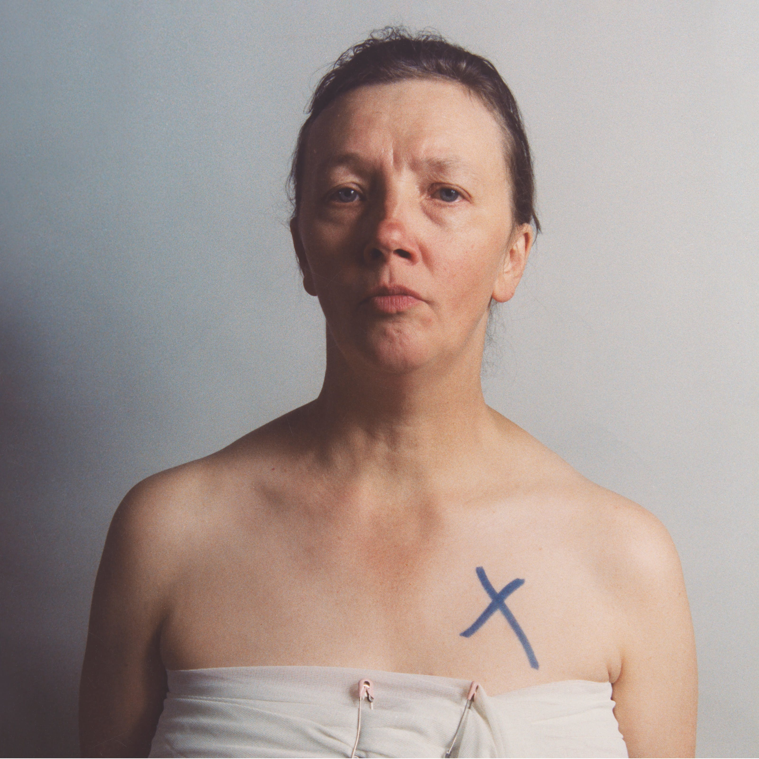 Half-body self-portrait of Jo Spence, with her chest wrapped in white muslin secured with two nappy pins and a cross in blue marker pen on skin above her left breast.
