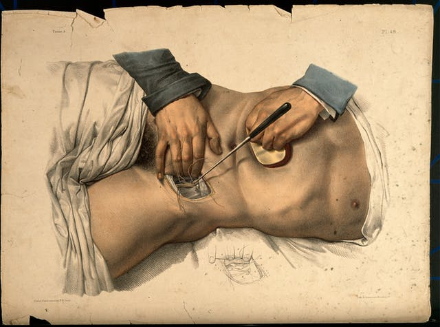 Coloured lithograph showing an operation being performed on the lower abdomen of a male patient.
