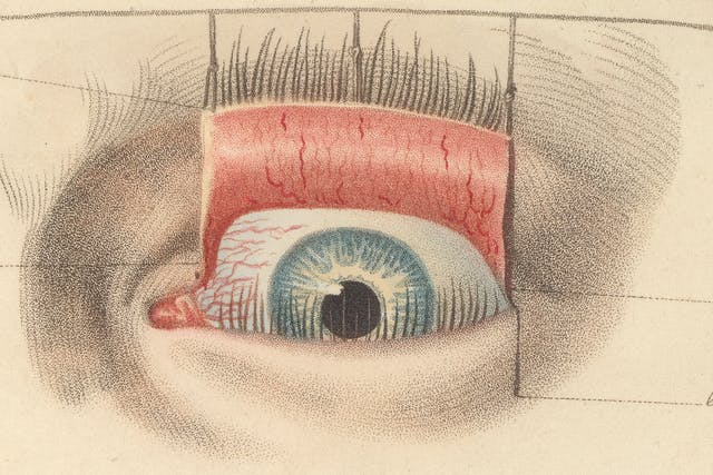 Close up of an engraving of eye surgery showing how tiny stipple dots are used to create colour and tone.