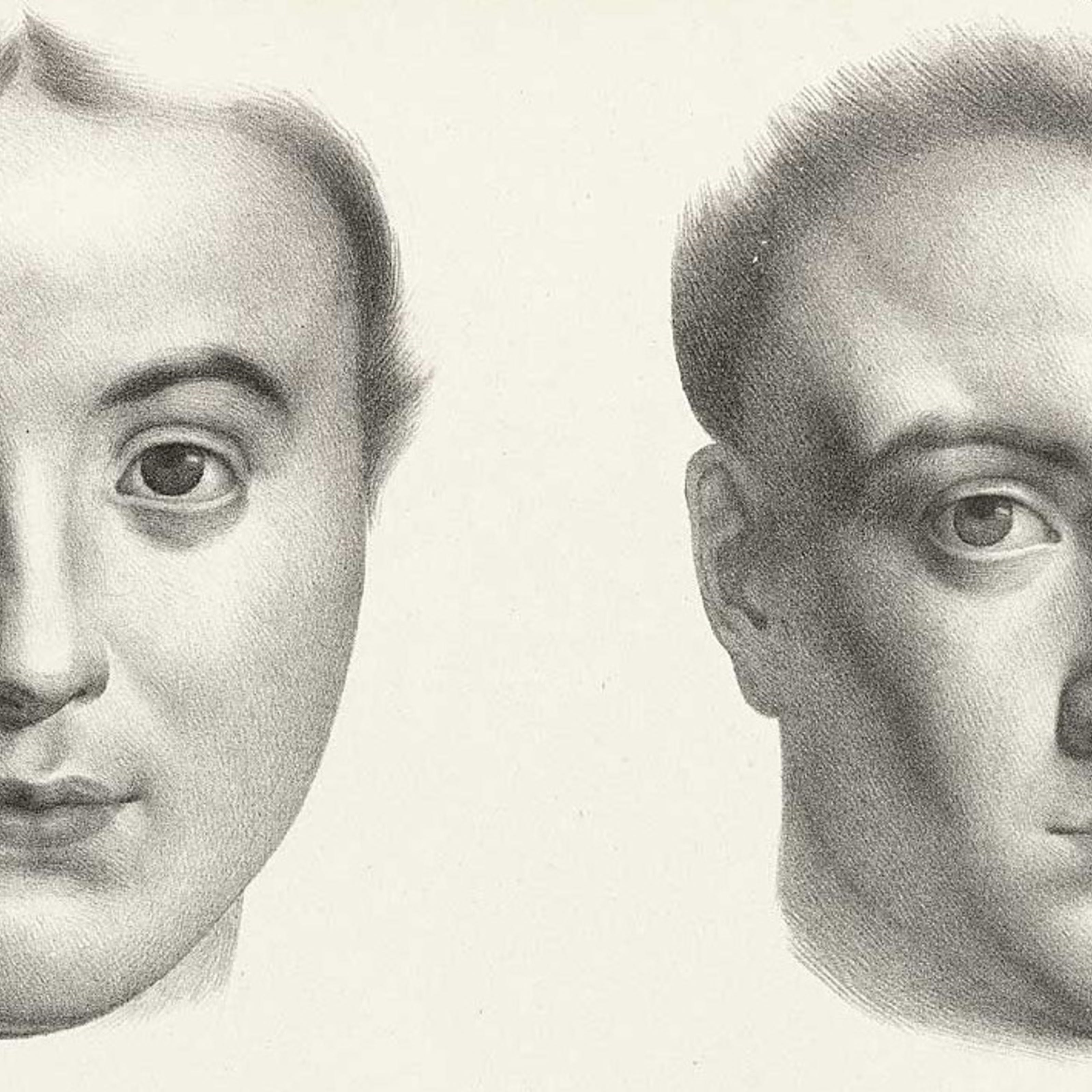 Black and white engraving of two women's differently shaped heads.
