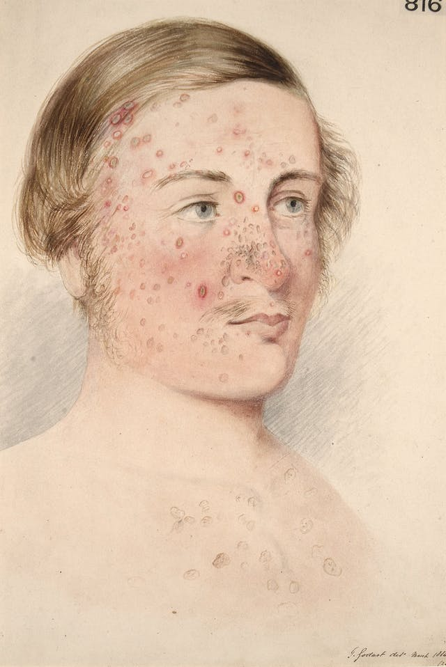 Photograph of an illustration showing the head and shoulders of a man, with red acne marks on his face, neck and chest.