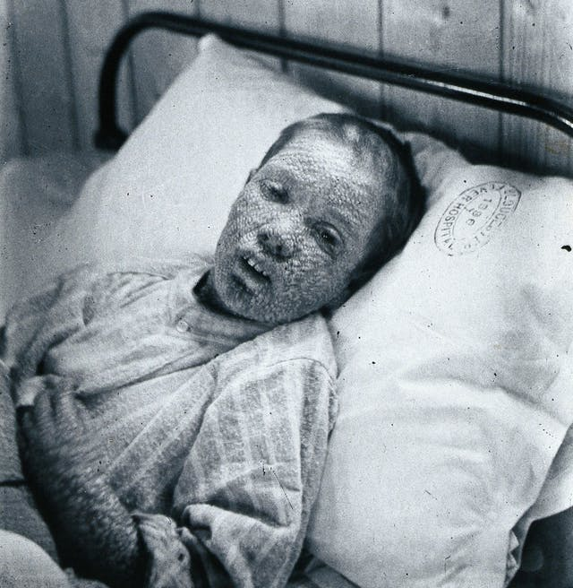 Gloucester smallpox epidemic, 1896: Ethel Cromwell, aged 14