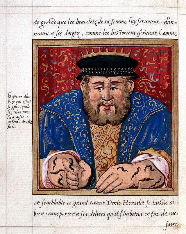Illustrated manuscript showing a fat kind with leeches on his arms and hands