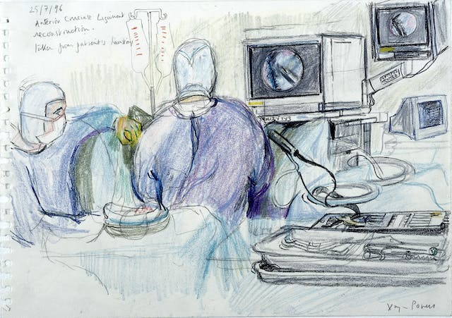 A colour sketch of an operation showing the back and side of two people wearing scrubs, gloves and masks, with the view on several monitors of the keyhole view inside the patient.