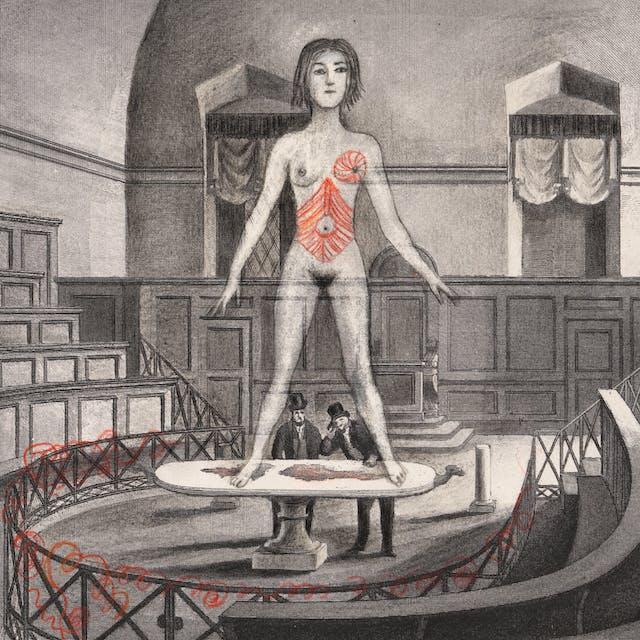 铅笔艺术品画在雕刻的雕刻,描绘有两个人的一位老解剖学剧院在中心,由看往一个大(在规模)的桌上站立在桌上的未解脱的妇女,胳膊远离她的身体。除了她的躯干和左乳房外,整个场景是黑色和白色的,并且薄帘线被编织成一些着红色的栏杆。