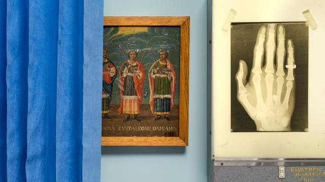 Photograph of an oil painting hung on a light blue wall, depicting 3 saints. The painting is partially hidden behind a blue concertina hospital ward curtain on the left of the frame. To the right is an x-ray lightbox also hung on the wall, with an x-ray of a hand taped to its surface. on the little finger of the hand you can see the outline of a ring.