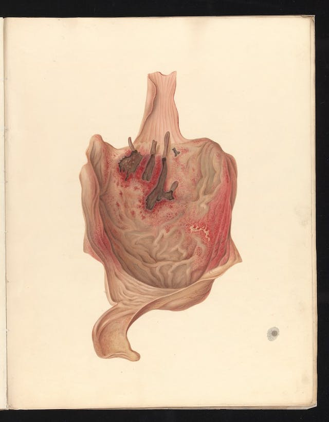 Coloured lithograph showing the stomach part of the oesophagus and duodenum of a young woman poisoned by arsenic.