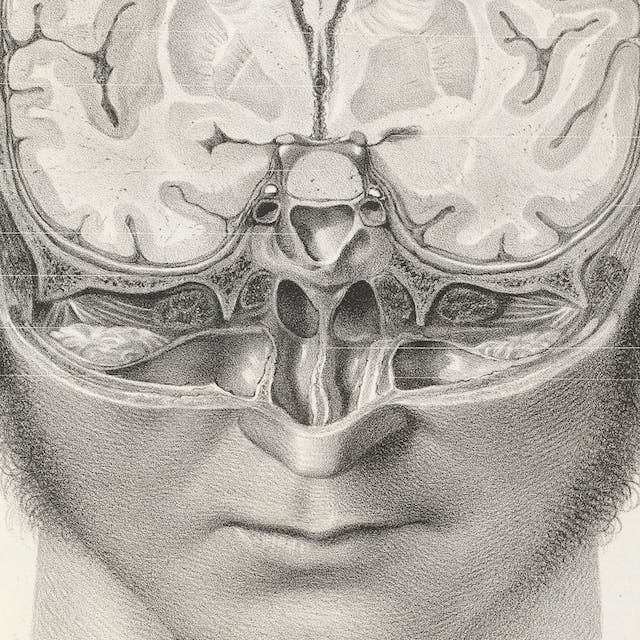 Black and white image showing a man's head with part of it cut away to reveal the brain inside.