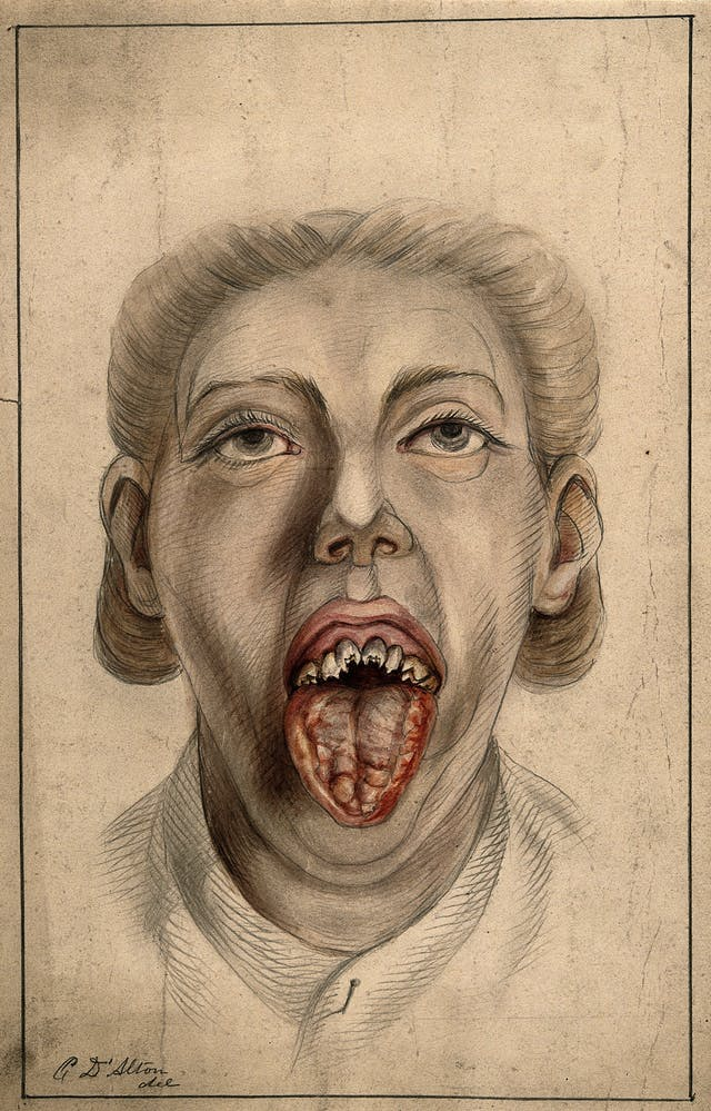 Woman with diseased tongue and broken teeth, 1874.