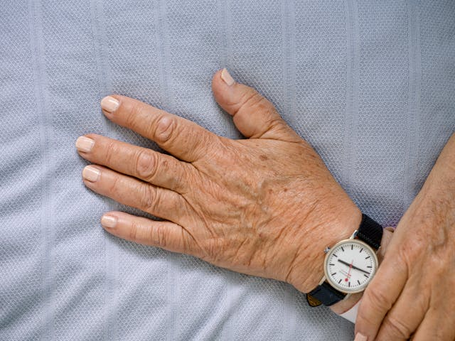 Photograph of the hands of a patient with light pink painted fingernails, resting on a light blue hospital bedsheet.