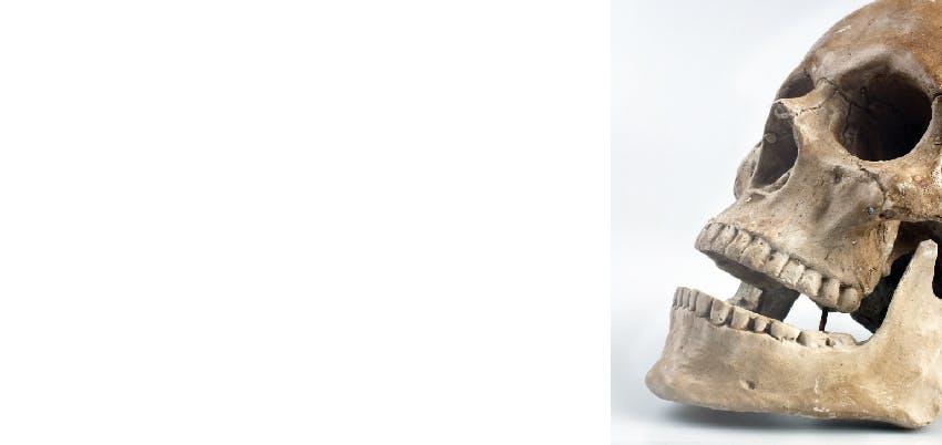 O que debe saber sobre os dentes do siso