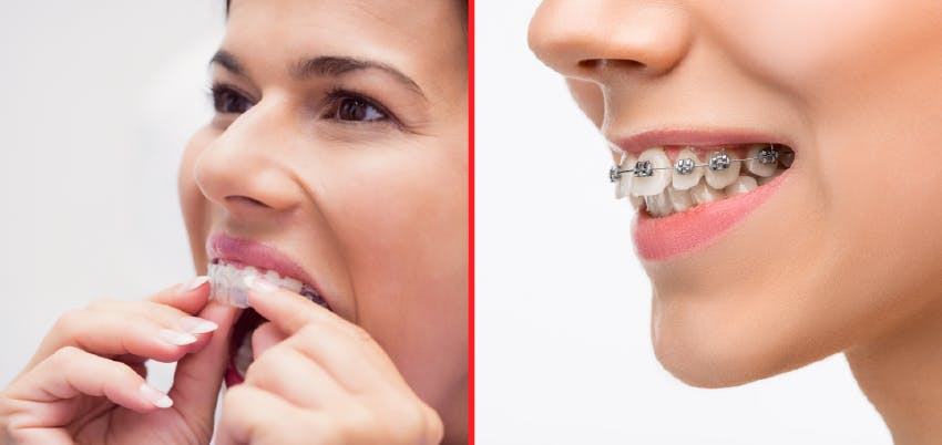 Orthodontics with braces or invisible dental aligners: Costs, duration, advantages and disadvantages