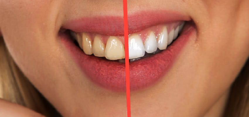 Teeth Whitening: at the clinic and at home