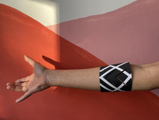 The real-life example of the Tentilex band on a human hand.